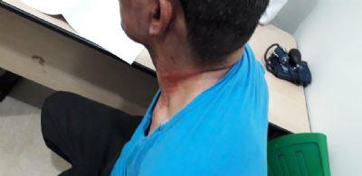 Homem é salvo após colocar fogo na casa e tentar o suicídio em Cuiabá