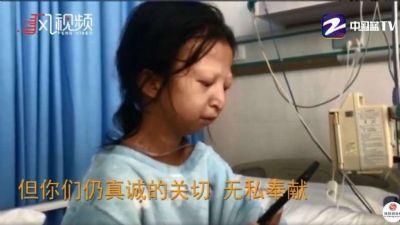 Morre jovem que se alimentou só de arroz e pimenta por 5 anos