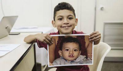 Campanha virtual arrecada recursos para bebês com fissura labiopalatina